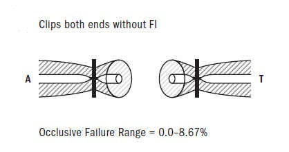 Figure 8: Clip Both ends without FI