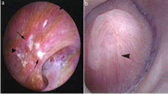 Figure 1. Intrarenal view of renal papillae. (A) stone former showing many Randall's plaques (arrows), and (B) non-stone former with far fewer lesions. (From:  Matlaga et al. J Urol 2007; 177: 31-38)