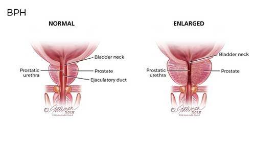 Figure 2. Diagram of a normal versus enlarged prostate