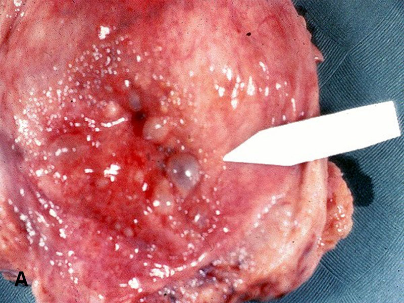 okozhat-e a cystitis súlycsökkenést