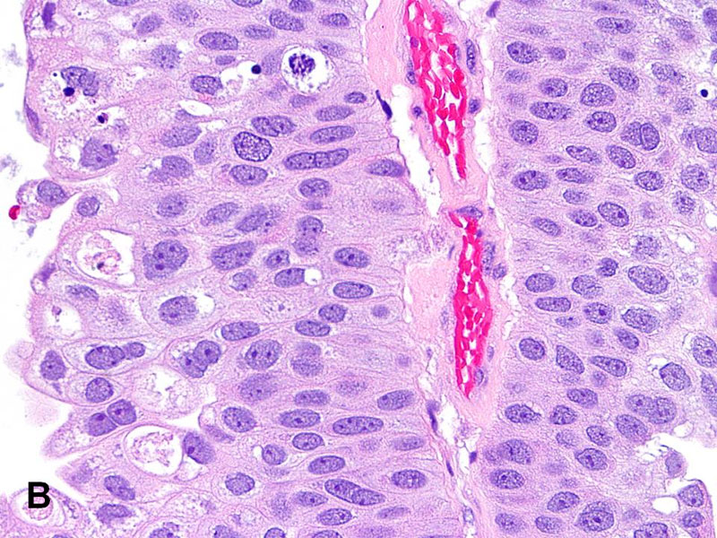 papillary urothelial definition)