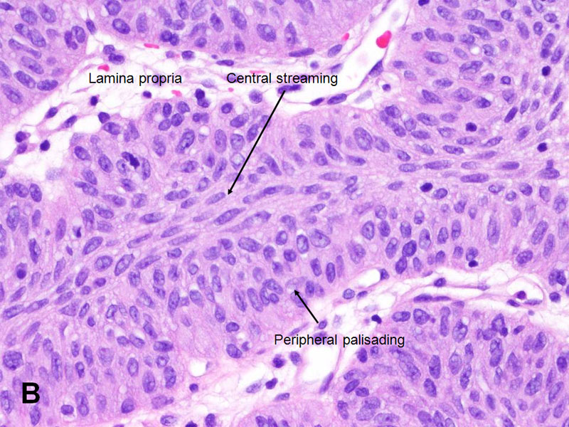 Papillary urothelial pathology outlines, Papilloma urothelial cancer