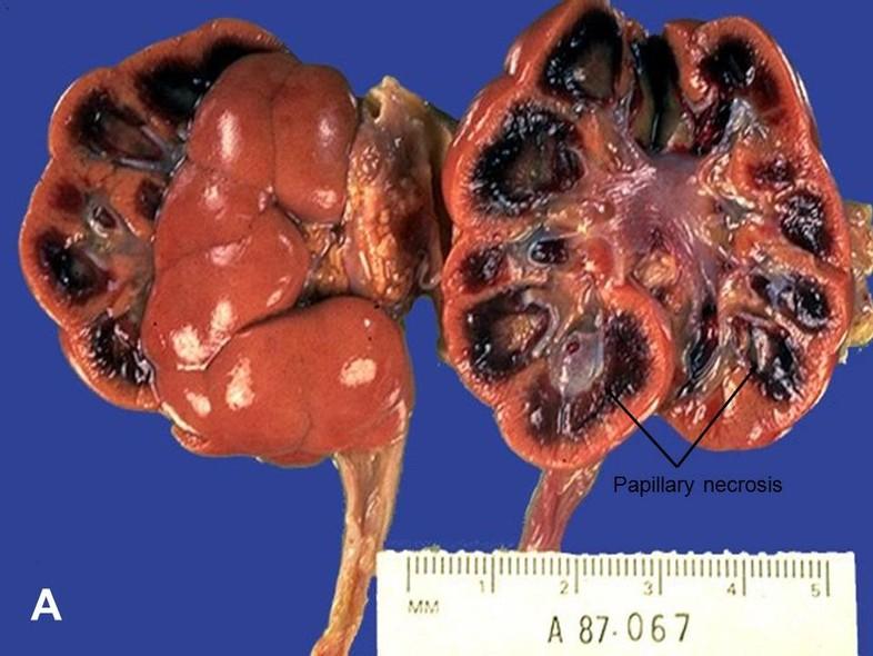 Condylomy papilloma, HPV fertőzés tünetei férfiak esetében