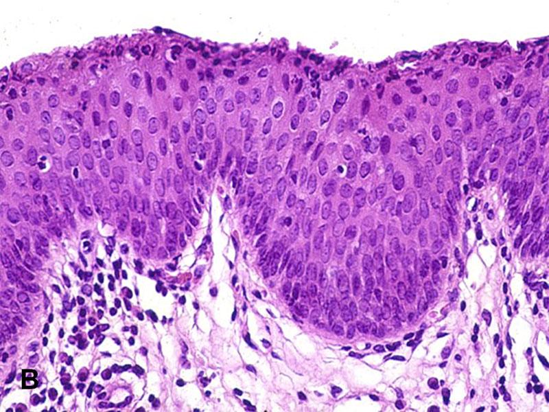 urethral condyloma pathology