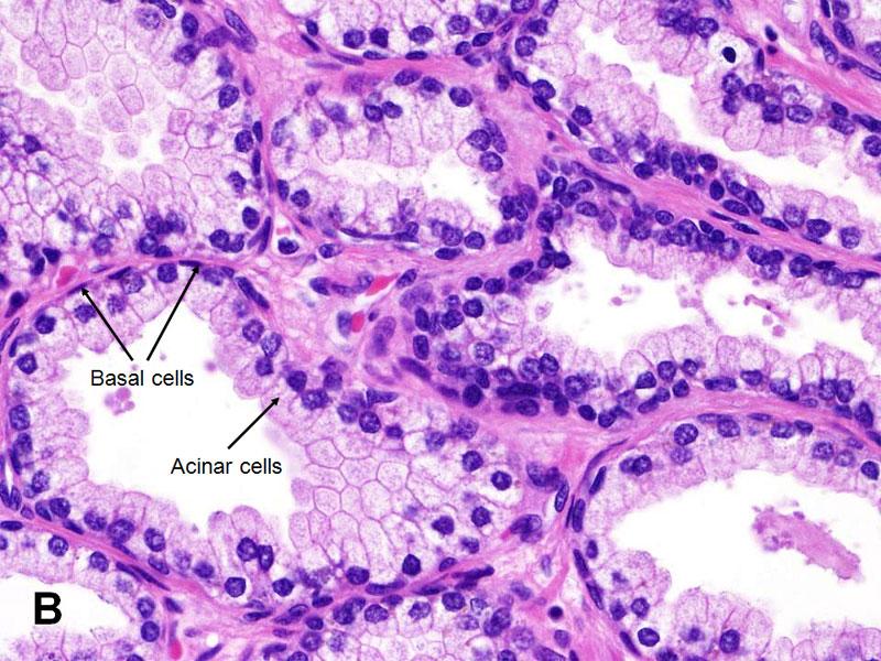 histology of prostate cancer Prosztata kezelés kömény olajjal
