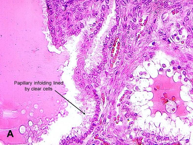 papillary lesion epididymis