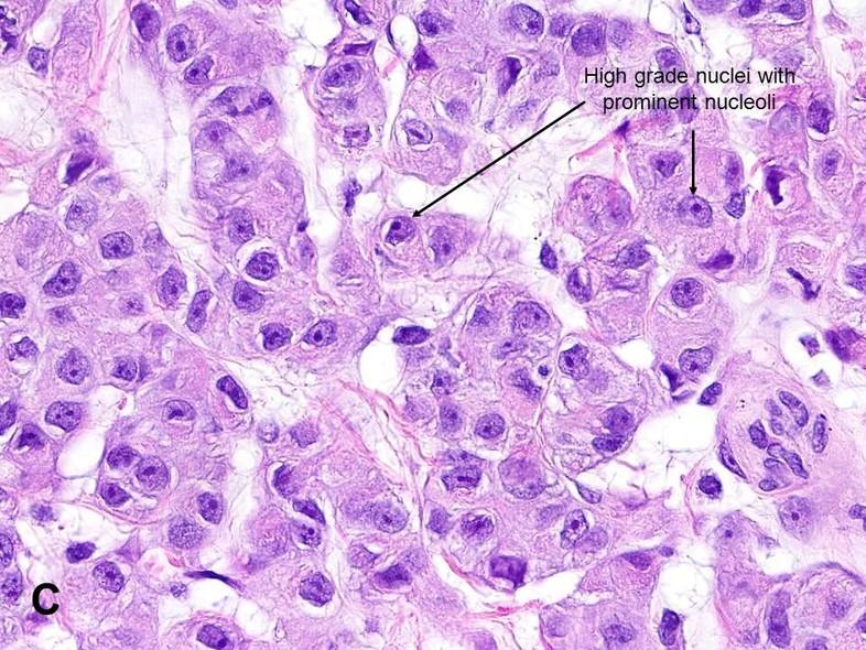 Malignant Mesothelioma Mm American Urological Association
