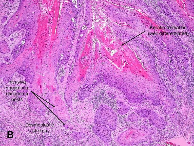 A hímvessző rákos daganatai