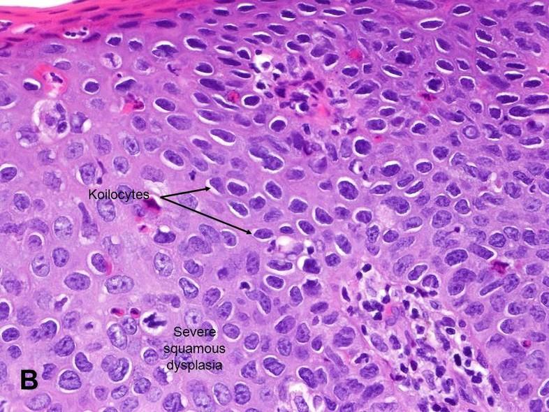 bowenoid papilloma hogyan lehet eltávolítani a férgeket a málnából