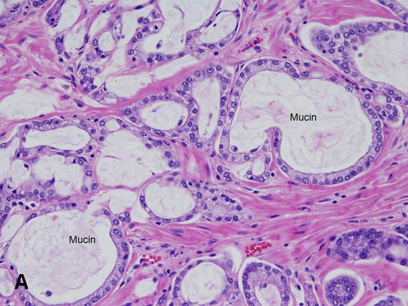 prostate gland neoplasia