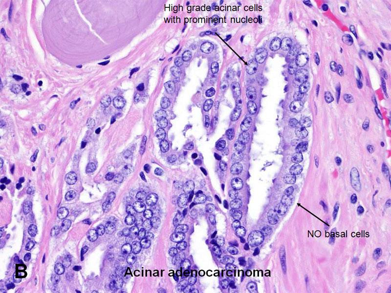microacinaris adenocarcinoma