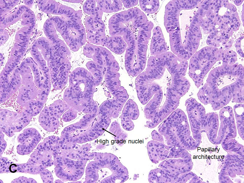 Mycoplasma ureablasm prosztatitis prostatitis naturheilkunde