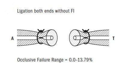 Figure 6: Ligation both ends without FI