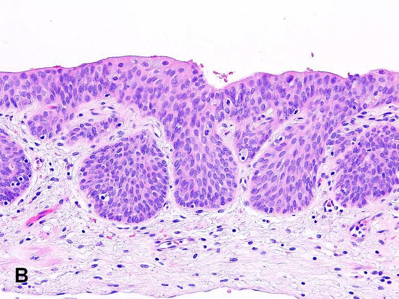 American Urological Association Von Brunn S Nests