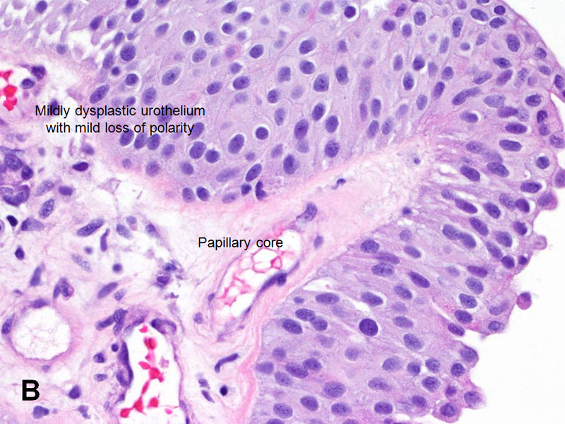 American Urological Association Papillary Urothelial