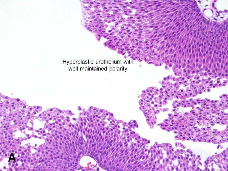 american urological association papillary urothelial neoplasm of