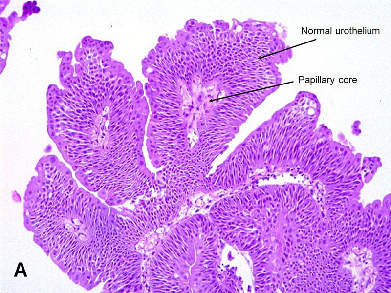 Urothelial Papilloma - American Urological Association
