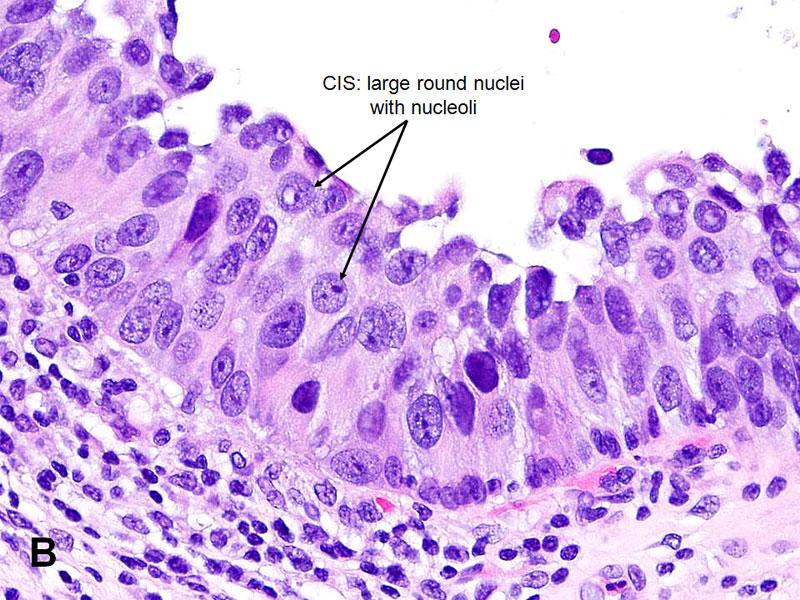 American Urological Association Urothelial Carcinoma In Situ