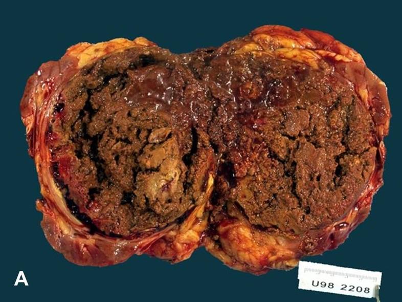 American Urological Association Papillary Renal Cell