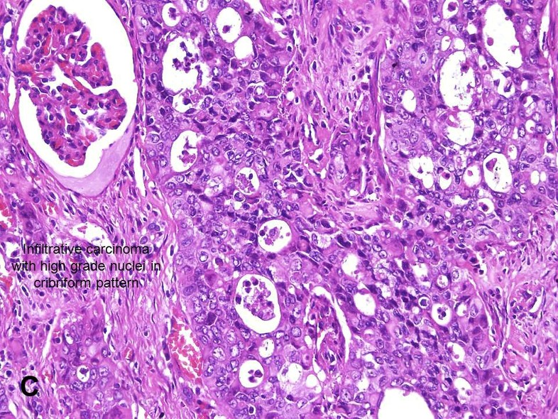 American Urological Association Renal Medullary Carcinoma