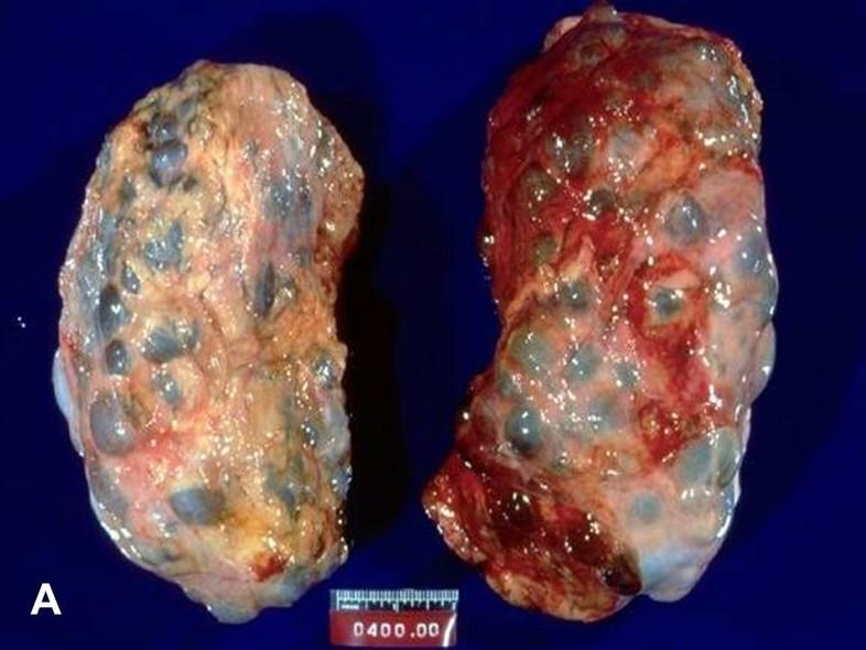 American Urological Association Adult Polycystic Kidney Disease