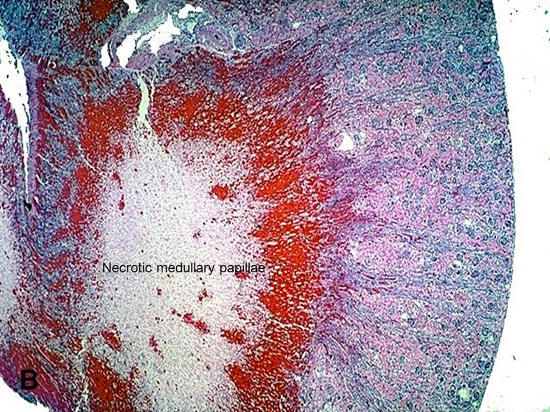a study of renal papillary necrosis rpn