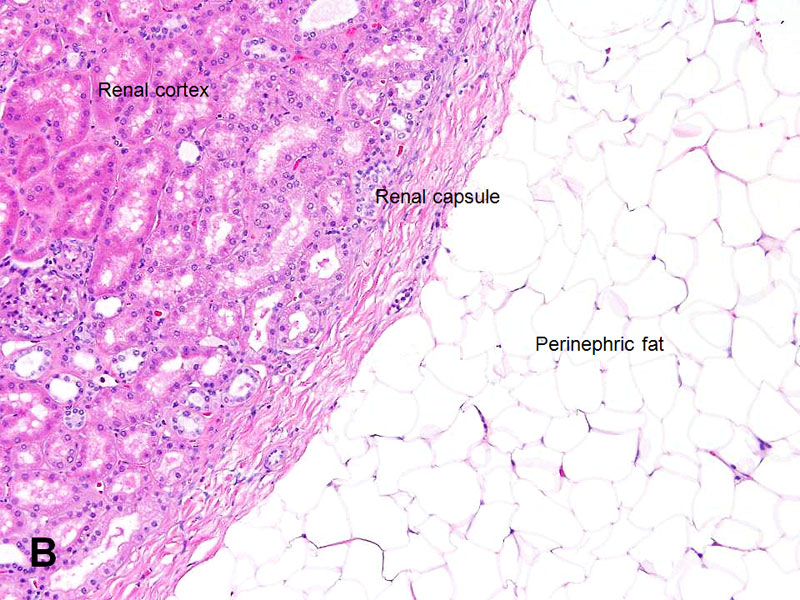 American Urological Association - Kidney: Perinephric Fat and ...