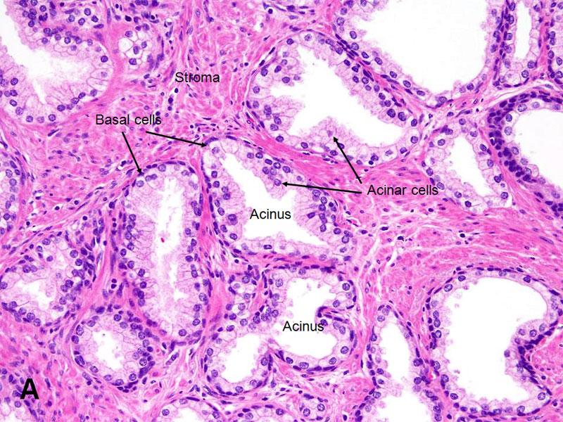 American Urological Association - Prostate