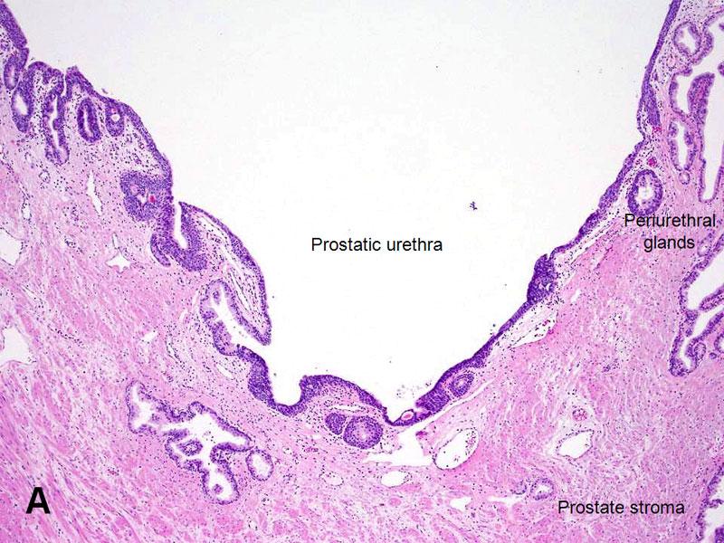 american urological association - prostatic urethra, Human Body
