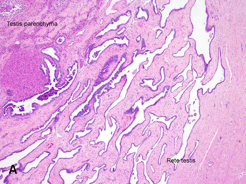 pampiniform plexus histology - photo #37