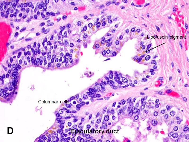 american urological association seminal vesicles