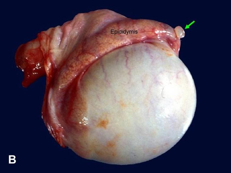 American Urological Association Testicular Appendages