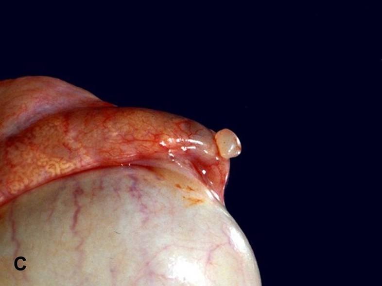 epididymal cyst infection