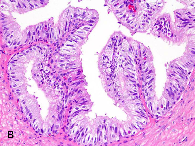 American Urological Association Vas Deferens