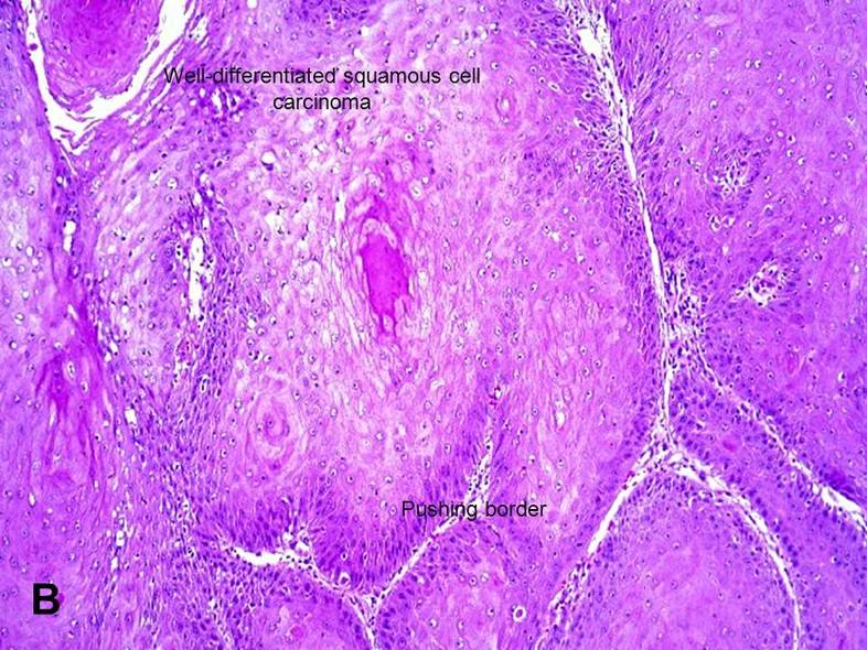 Verrucous Carcinoma - American Urological Association