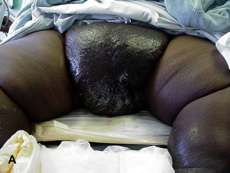 Problems of the Foreskin and Glans Penis