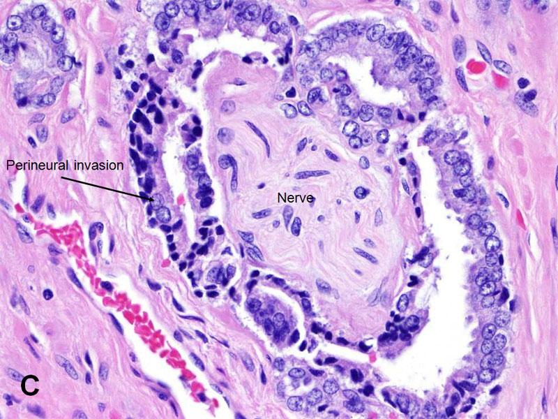 Prostate Cancer Histology - Bing images
