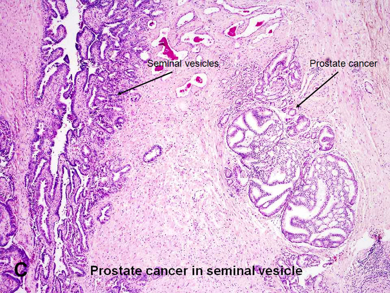 prostatitis ursachen der krankheit chronische