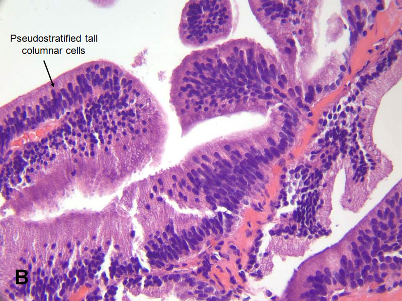 prostata candida