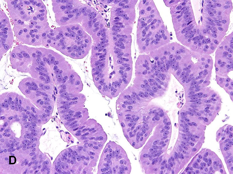 Esophagus - Wikipedia