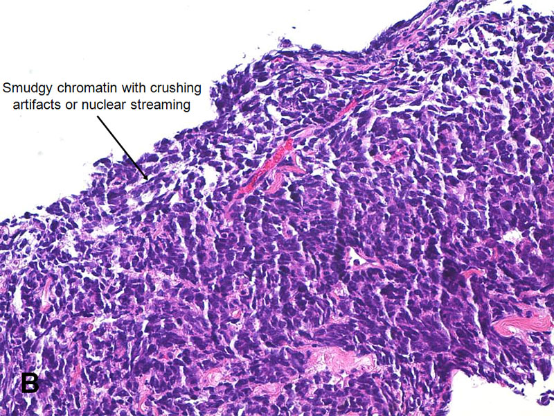 Study of small cell carcinomas
