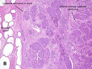 American Urological Association Urothelial Carcinoma Of