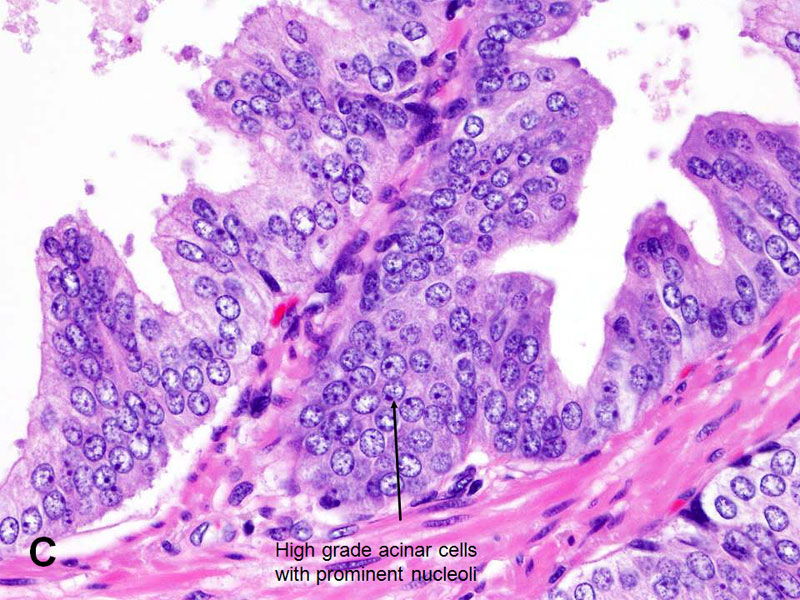High Grade Prostate Cancer