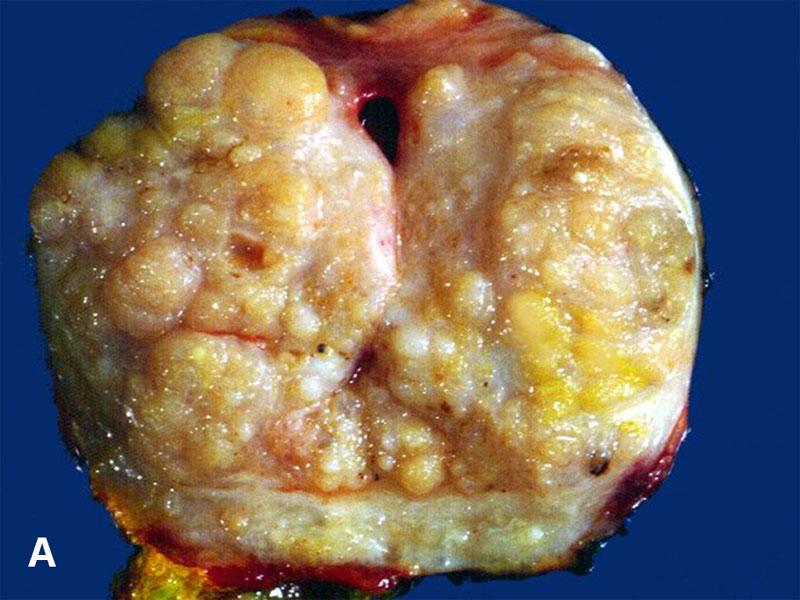 prostata nodulare stromale