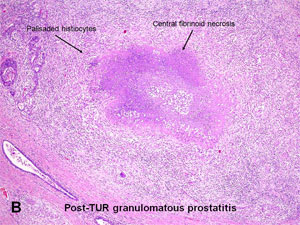 Pathogenesis of prostate cancer and hormone refractory prostate cancer