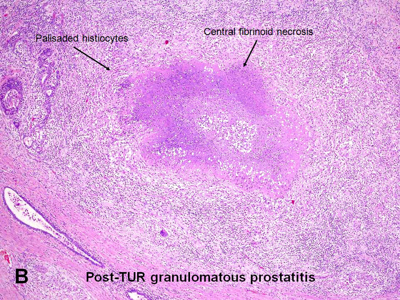 American Urological Association - Prostatitis