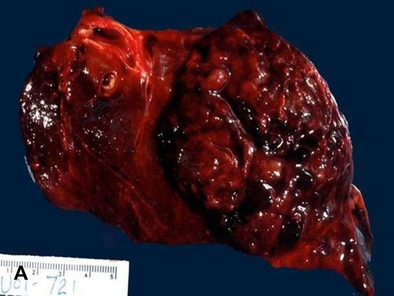 american urological association malignant peripheral nerve sheath