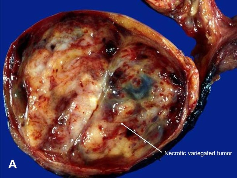 Penile Cysts
