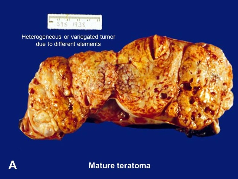 American Urological Association Teratoma