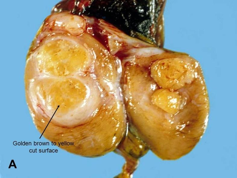 Leydig cell cancer